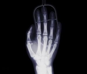 Preview wallpaper arm, x-ray, bone, computer mouse